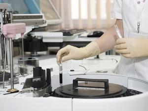 Что делать, чтобы у вас не было рака: рекомендации от Роспотребнадзора